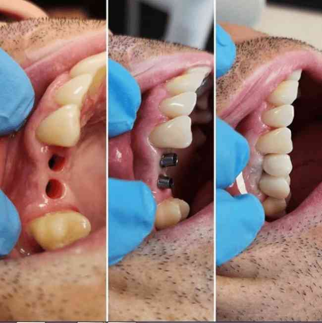 DENTISTA GENERAL CON LICENCIA ATENDIENDO ADULTOS Y