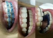 ¿buscas un dentista ya mismo ¿con opciones de pago