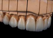 Laboratorio dental estetica