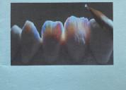 Estética dental laboratorio